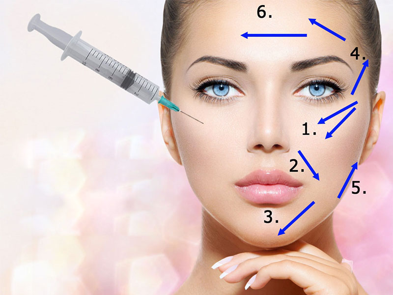 who-is-suitable-for-filler-injection
